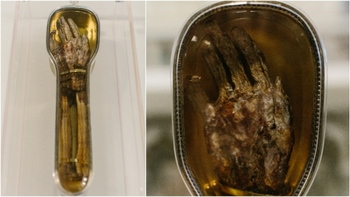 st-francis-xavier-severed-arm.jpg